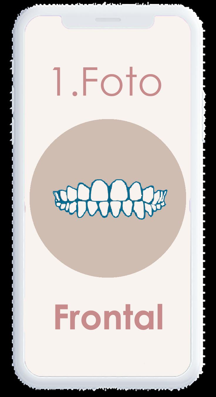 phonefrontal1.5
